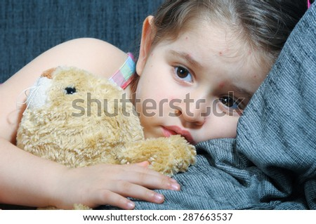 Little girl with varicella, chicken pox, small pox. - stock photo
