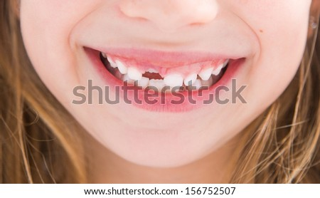 little girl without one tooth smiles close-up - stock photo