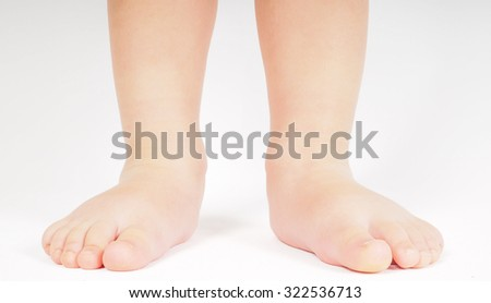 Little person standing up barefoot towards bright background - stock photo
