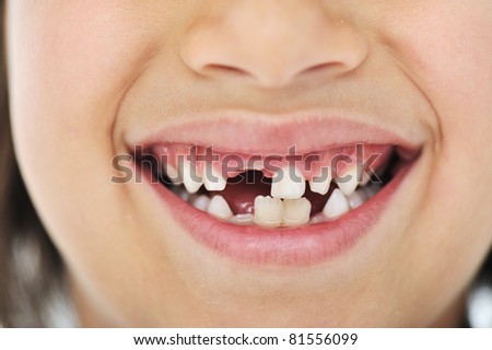 Lost milk tooth, cute boy with long hair - stock photo