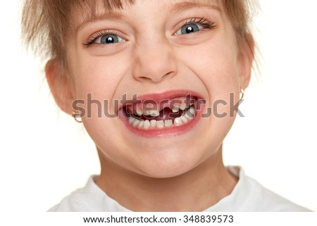 lost tooth girl face closeup - stock photo