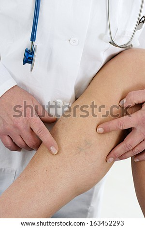 Lower limb vascular examination because suspect of venous insufficiency   - stock photo