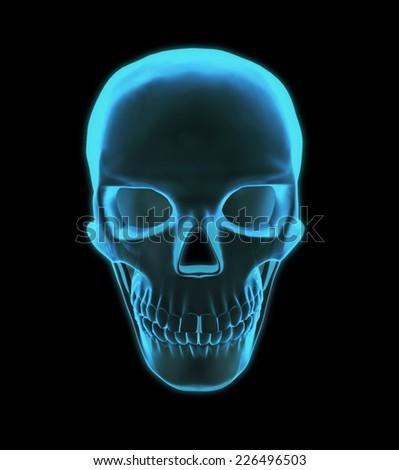 Luminous in x-rays of the skull - stock photo