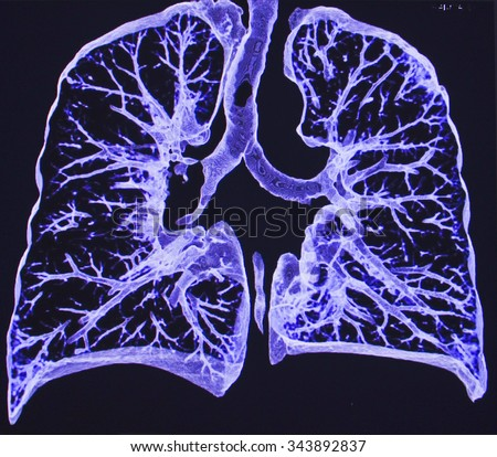 lungs CT - stock photo