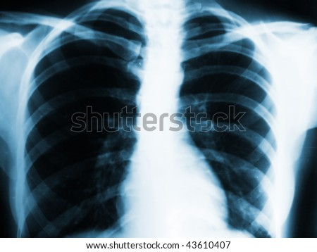 lungs xray - stock photo
