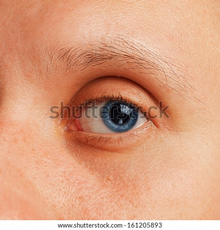 Macro image of irritated male eye - stock photo