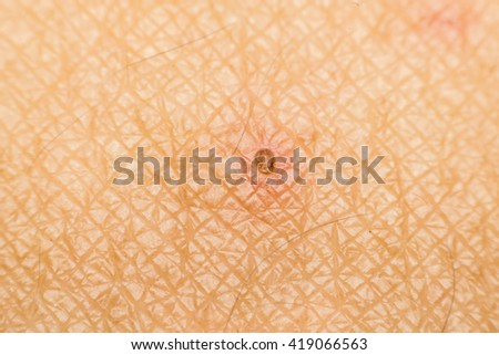 Macro of dry skin asia human with dermatology - stock photo