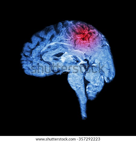 Magnetic Resonance Imaging ( MRI ) of brain and Stroke ( Medical , science and healthcare concept ) - stock photo