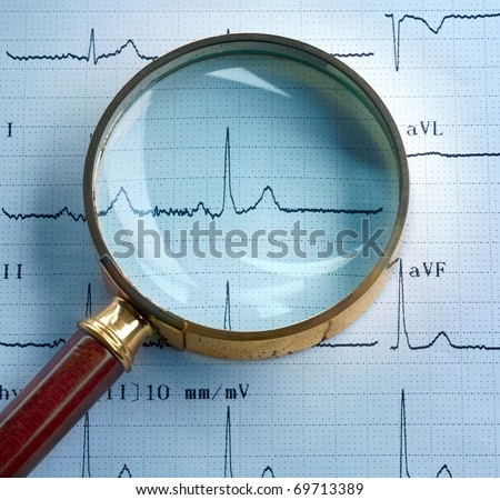 Magnifier on cardiogram - stock photo