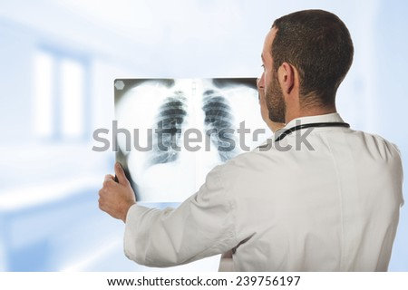 male doctor looking at the x-ray picture of lungs  - stock photo