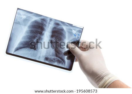 Male hand in medical glove holding lung radiography, isolated on white background  - stock photo