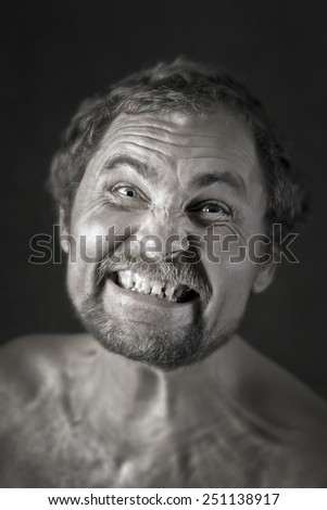 Male patient with Ebola - stock photo