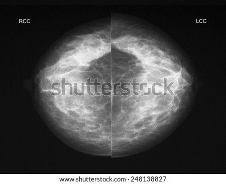 Mammography in CC projection - stock photo