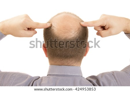 man alopecia baldness hair loss isolated - stock photo