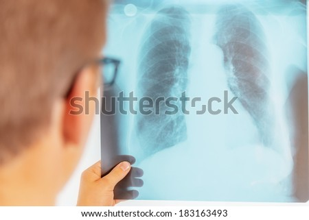Man doctor looks at x-ray image of lungs in a hospital, rear view - stock photo
