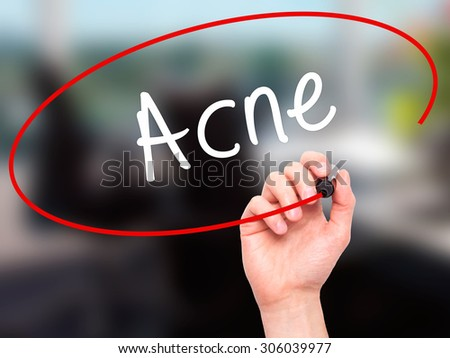 Man Hand writing Acne with black marker on visual screen. Isolated on office. Business, technology, internet concept. Stock Photo - stock photo