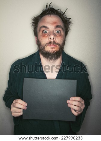 Man who looks like a junkie holding a blank black sign that you can add text to. Man is bruised up looking with wide eyes and messy hair - stock photo