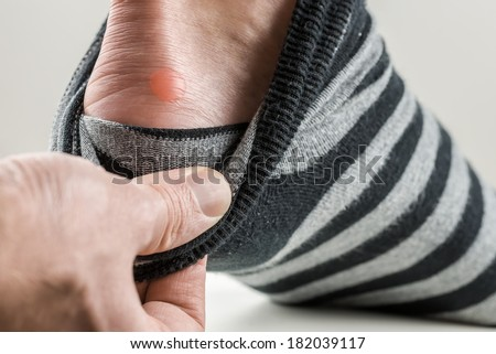 Man with a blister on his heel lifting down his sock to reveal the raw red patch of rubbed skin. - stock photo