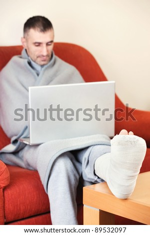 man with a broken leg on a sofa at home  working on laptop - stock photo