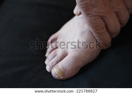 Man with a hand on his foot with toenail fungus - stock photo