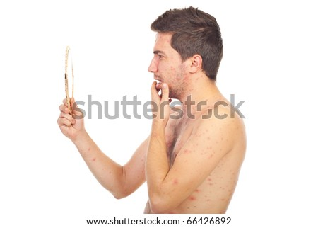 Man with chickenpox looking with surprised face in a mirror isolated on white background - stock photo
