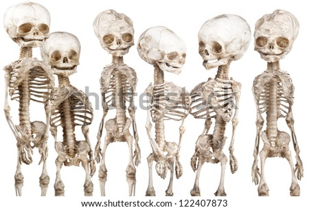 Many children's human medical skeleton over white - stock photo
