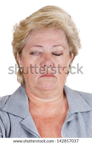 Mature woman with Bell's Palsy unable to fully close her right eye - stock photo