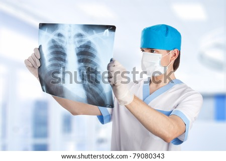 medical doctor looking at x-ray picture of lungs in hospital - stock photo