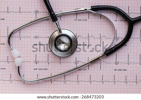 medical equipement Stethscope overlying an ECG or EKG - stock photo