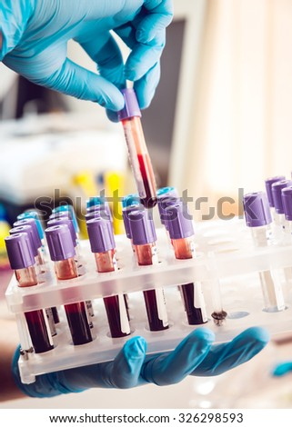 Medical equipment. Blood test - stock photo