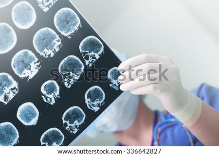 Medical experts studied the EEG condition of the patient - stock photo