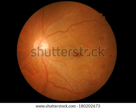 Retina medication