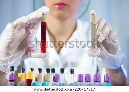 Medical test tube samples in doctor's hand - stock photo