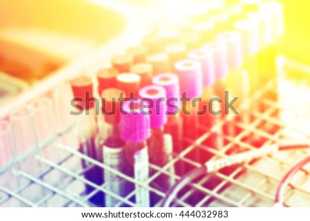 Medical test-tube with blood samples with color filters - stock photo