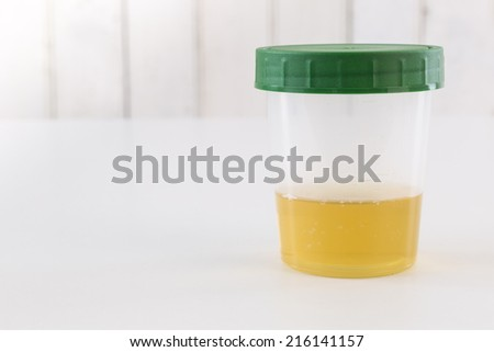 Medical urine test, close up - stock photo
