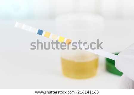 Medical urine test with urine test strips, close up - stock photo