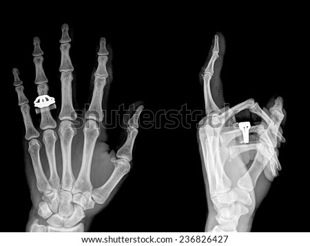 Medical X-Ray imaging of hand fingers used in diagnostic radiology of skeleton bones , two position - stock photo
