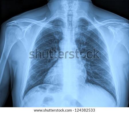 Medical X-rays - stock photo