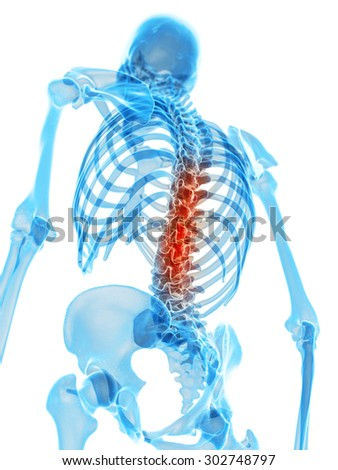medically accurate illustration - painful back - stock photo