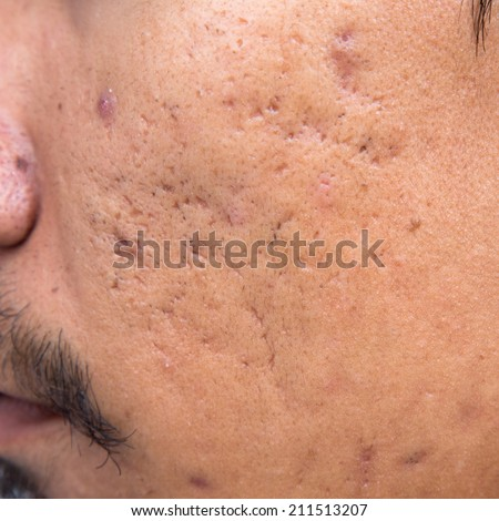 Men are pitted facial acne - stock photo
