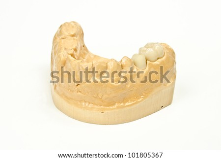 metal free ceramic crowns in production - stock photo