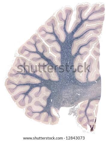 Microscopy of the Human Cerebellum at 240 X - stock photo