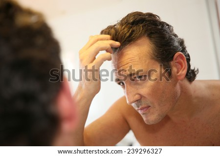 Middle-aged man concerned with hair loss - stock photo