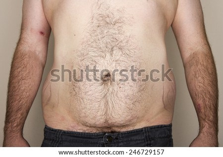 Midsection of an overweight obese male facing the camera - stock photo