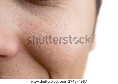 Milia (Plural milia) on face with space for your text. - stock photo