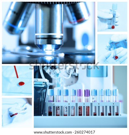 mix of blood testing in laboratory take with blue filter - stock photo