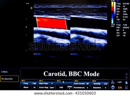 Modern echocardiography (ultrasound) machine monitor. Colour image. New hospitl equipment. Carotid artery. - stock photo