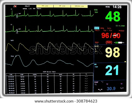 Modern Electrocardiogram Monitor Display - stock photo