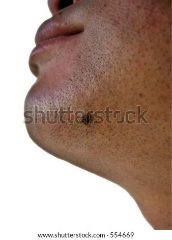 Mole under the chin - stock photo