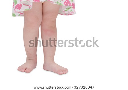Mosquito bites sore on baby legs over white background - stock photo